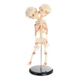 Cabeça Dupla Anatomia Do Bebê Caveira Esqueleto Anatômico Cérebro Anatomia Educação Modelo Médico