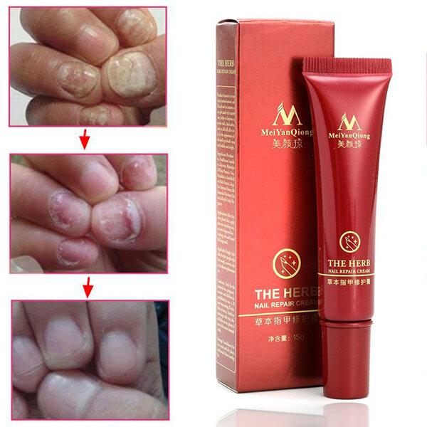 Toenail Fungus Treatment Cream Finger Toe Nail Fungus Onychomycosis Remover