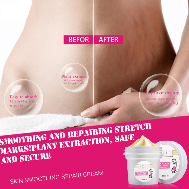 Stretch Mark Removal Cream Postpartum Scar Obesity  Mask Powerful  Scar  Removal Cream